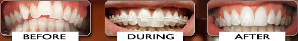 Orthodontist Slidell Braces Dentist Louisiana